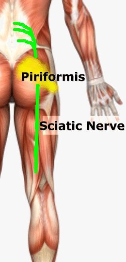 Searching for a Cure for Lower Back Pain or Sciatica? Sciatica is term to descri...
