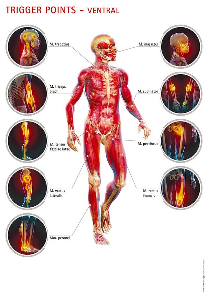 Trigger Points - Front.