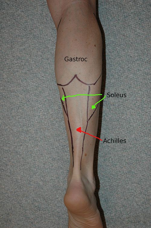 An easy to read post about taking care of a common trigger point in the calf wit...