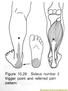 Grace's Tri-bulations: Trigger Point Plantar Fasciitis Away Now: How To Ease...