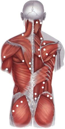 Localization of the typical pain of trigger points in fibromyalgia (muscle pain)...