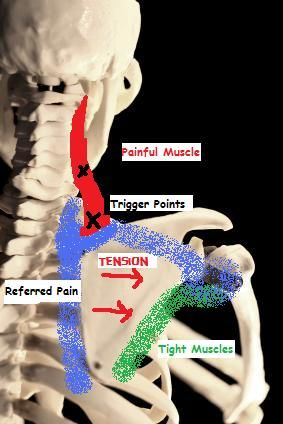 Massage Therapy and Trigger Points - Knoxville Massage|Transformation.