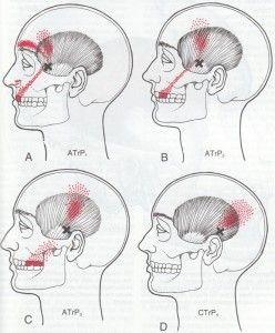 Travell temporalis trigger point.