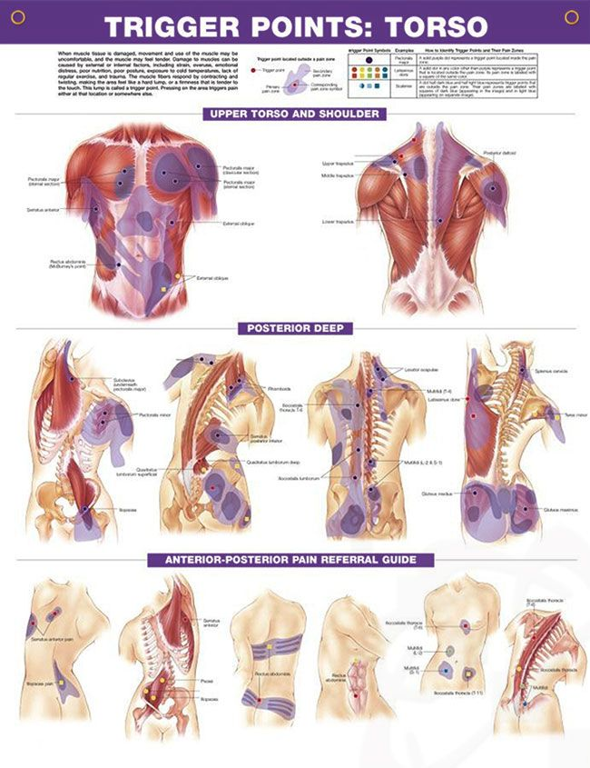 Trigger Points Set anatomy poster two posters show trigger point locations with ...
