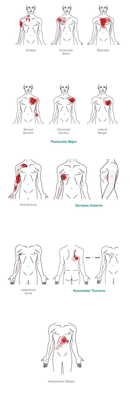Trigger point referral pain pattern for the chest.