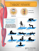 If you have #SciaticPain, what #sciatica stretches help you?